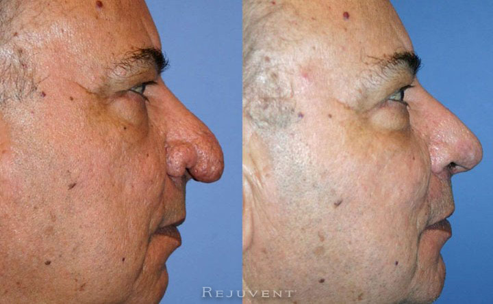 Rhinoplasty, nose job scottsdale