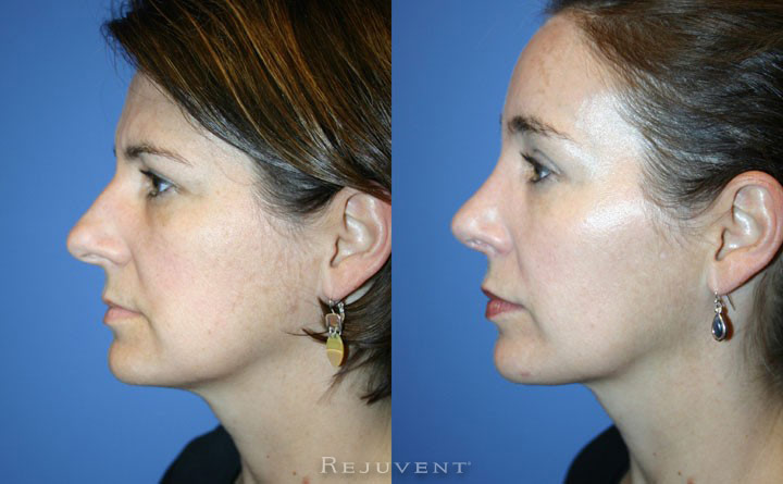 Rhinoplasty at Rejuvent AZ