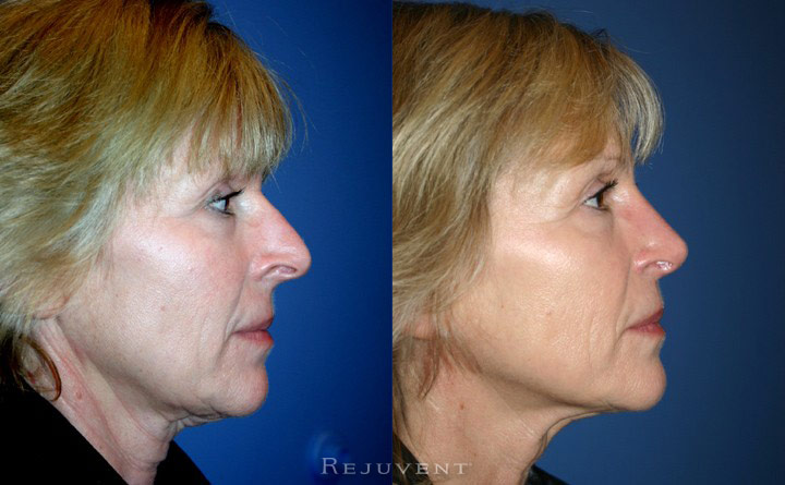 Rhinoplasty - Nose Job Scottsdale, AZ