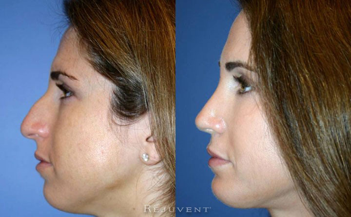 Rhinoplasty - Nose surgery - Scottsdale
