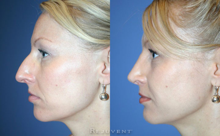 Rhinoplasty, nose job, Scottsdale