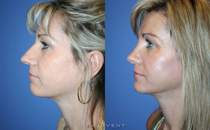 Rhinoplasty, female patient, Rejuvent Scottsdale