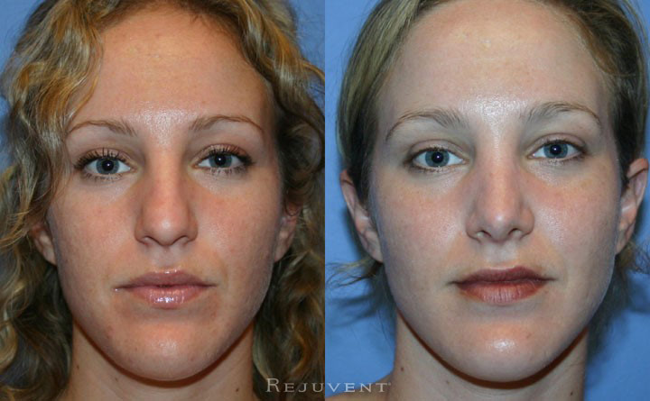 Rhinoplasty at Rejuvent, Scottsdale in AZ