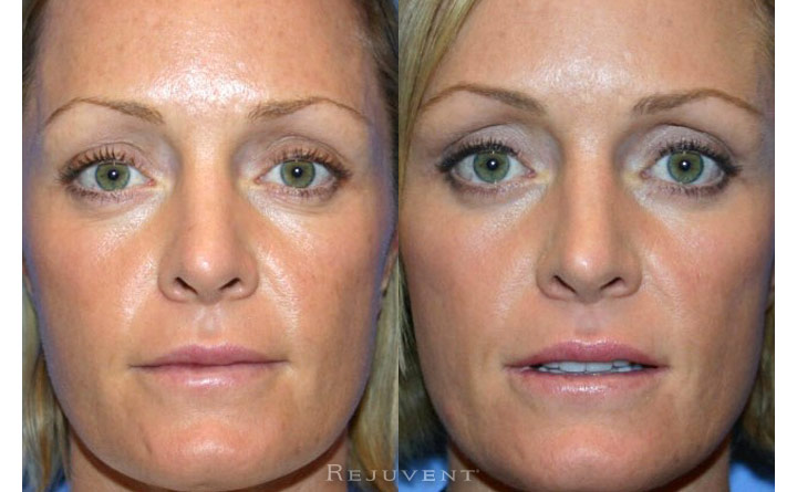 Lower Blepharoplasty Patient 4
