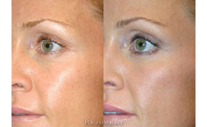 Lower Blepharoplasty Patient 5