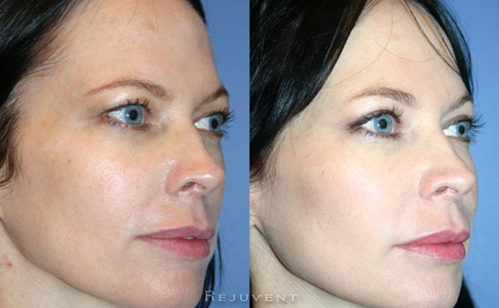 Upper Blepharoplasty Patient 4