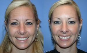 Botox Injections Scottsdale