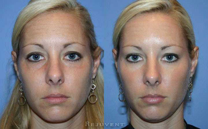 Botox removed this patient's tired look