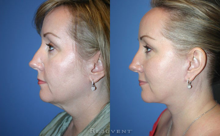 FaceLift with Corset Patient 1