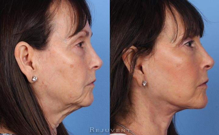 FaceLift with Corset Patient 3
