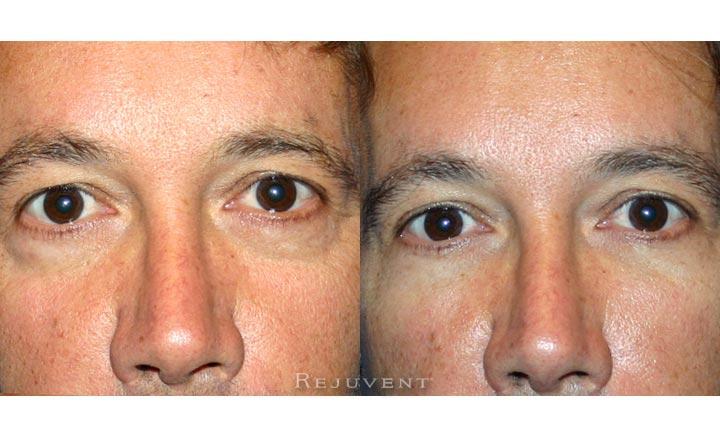 Under Eye Rejuvenation Male