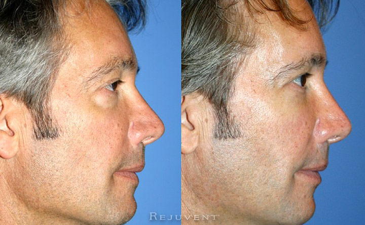 Under Eye Filler Rejuvenation Patient 1