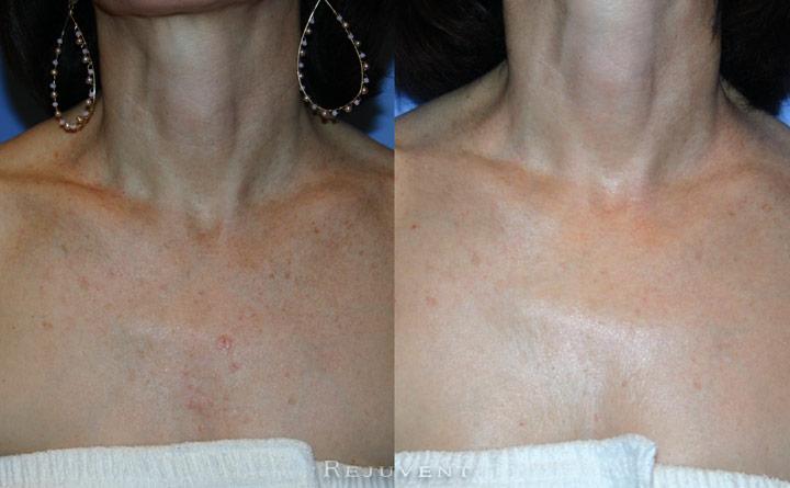 FotoFacial and Texture Improvement Patient 1