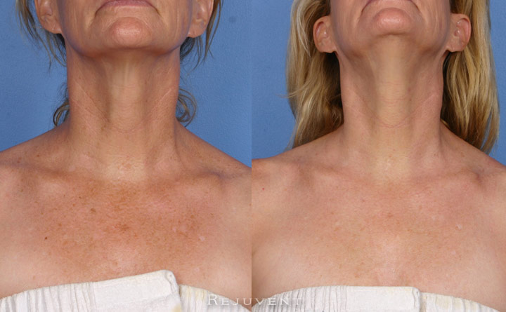 FotoFacial and Texture Improvement Patient 2
