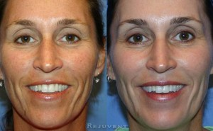Fotofacial IPL and Chemical Peel