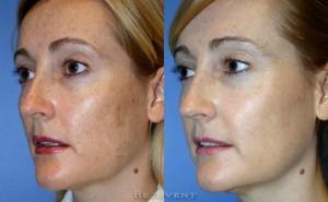 See more Rejuvent Botox Photos
