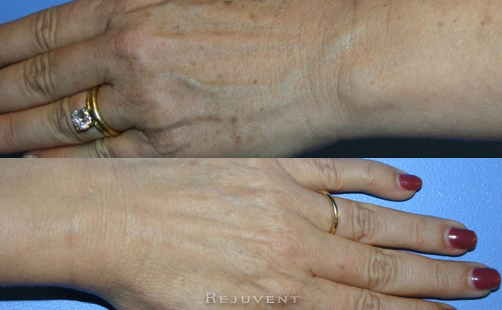 FotoFacial IPL on hands