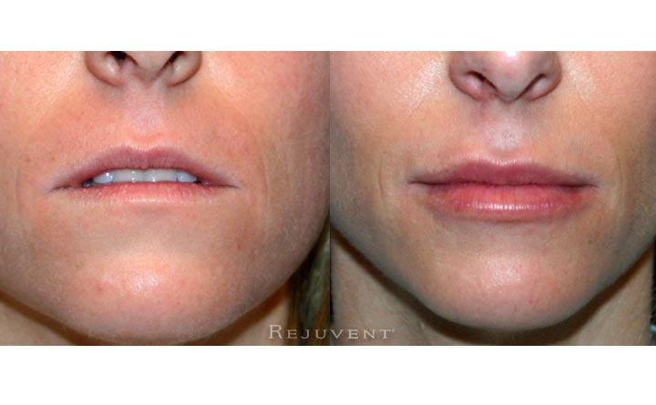 Fuller Lips less lines Female 2