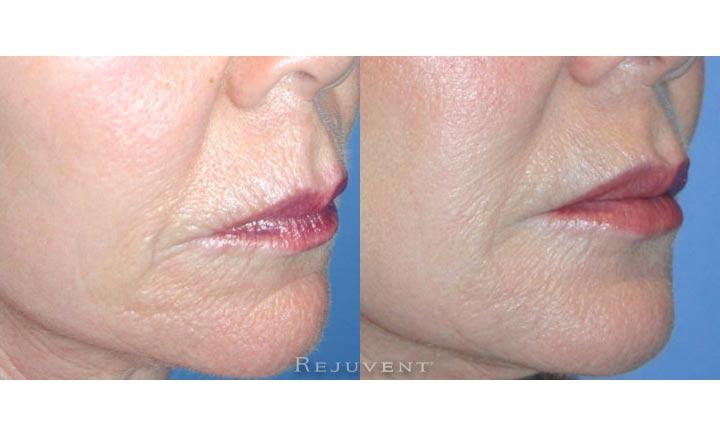 Fuller Lips Patient 1