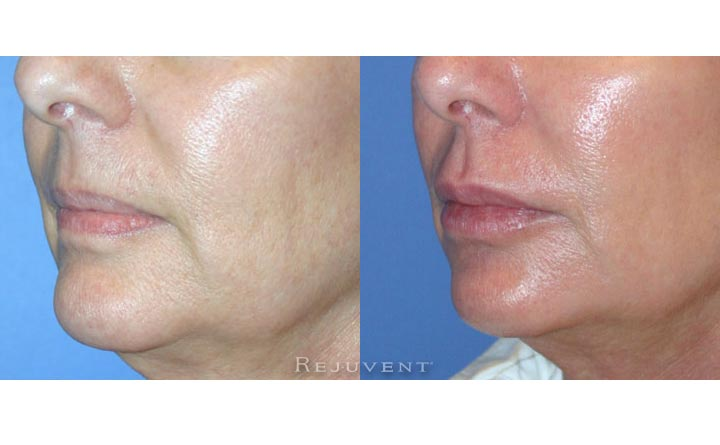 Fuller Lips Patient 3