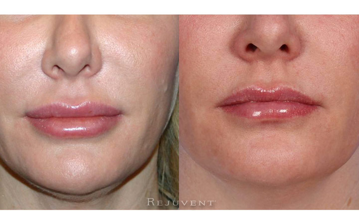 Lip Filler Correction with