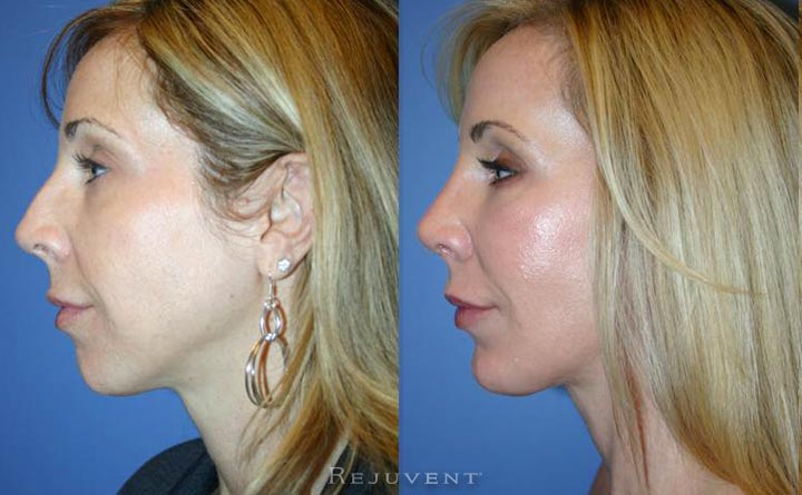 Rhinoplasty and Chin Augmentation Female Patient Scottsdale