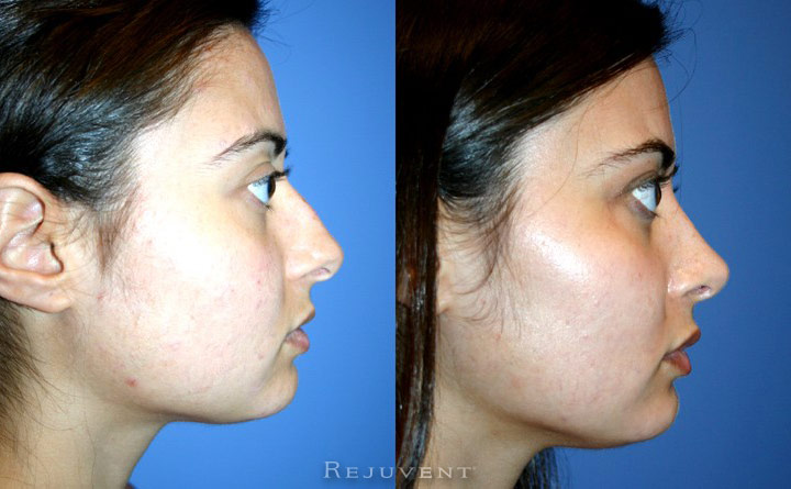 Rhinoplasty at Rejuvent Scottsdale