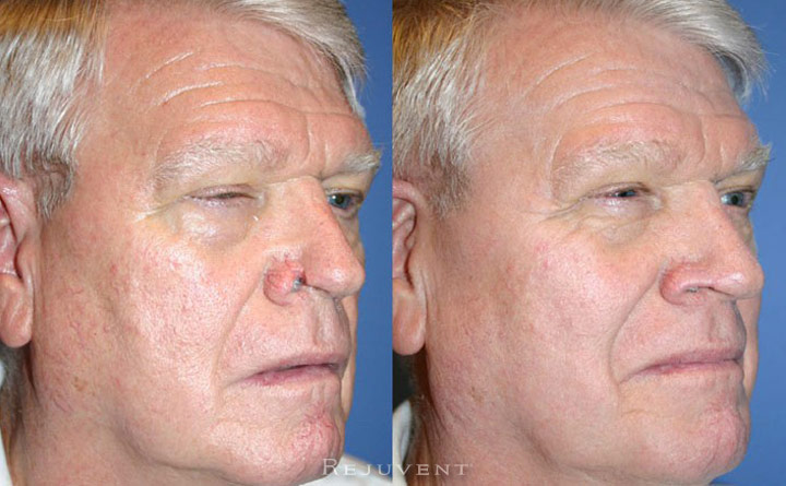 Rhinoplasty, male patient, Scottsdale Rejuvent