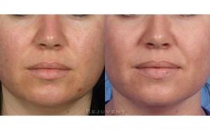 See more Rejuvent Clogged Pores Photos