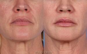 See more Rejuvent Pore Reduction Photos