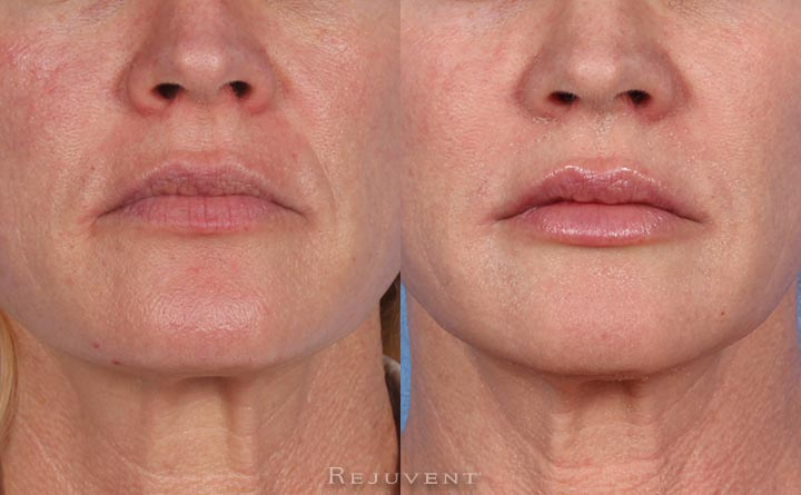 Firming, Peels, Fotofacial and Microdermabrasion Patient 1