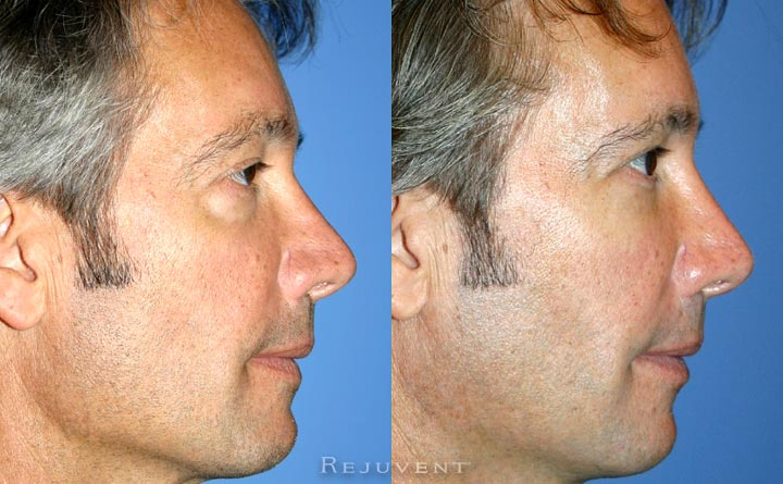 Under Eye filler male patient