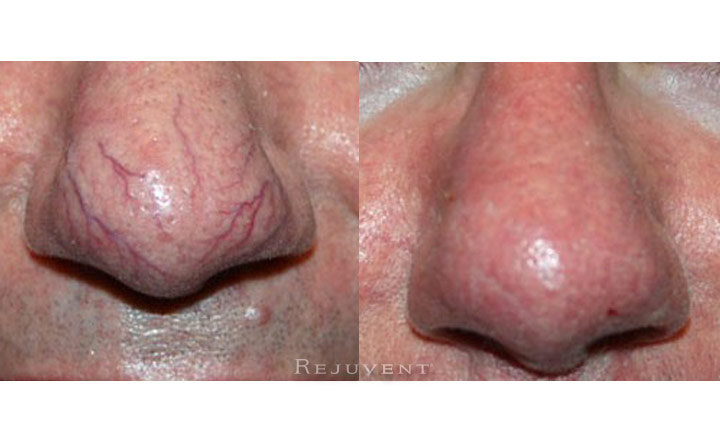 Veinwave Treatment Nose