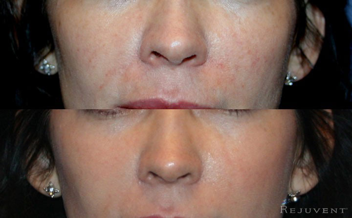 Veinwave removes facial veins