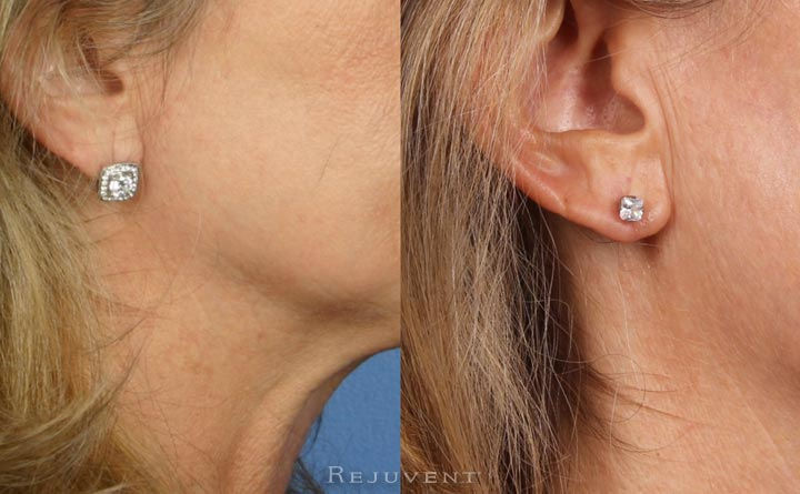 Earlobe Repair in Scottsdale