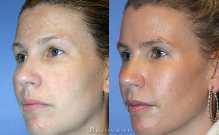 Liquid Facelift Patient 14