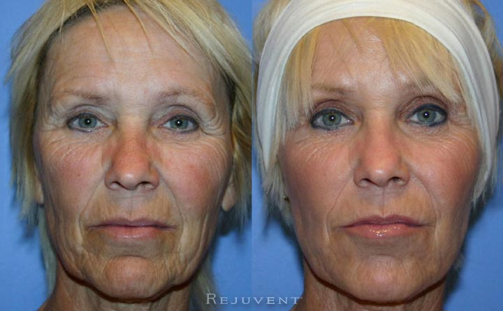 Liquid Facelift Patient 11b