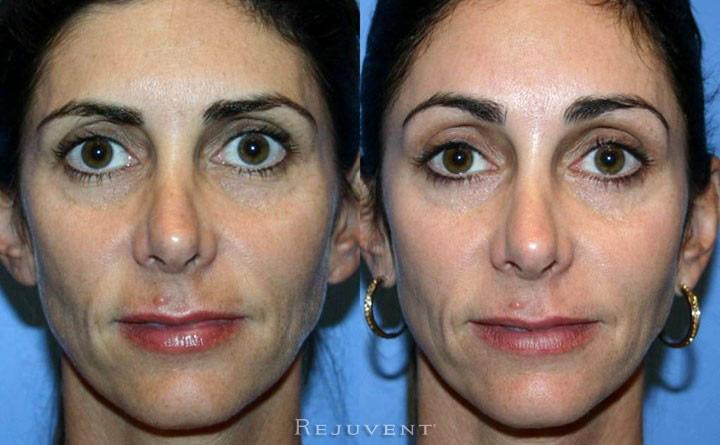 Botox Brow Lift Photos Rejuvent Medical Spa Scottsdale