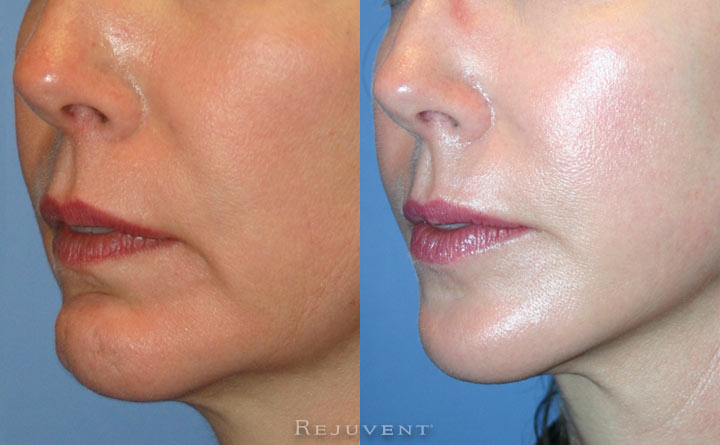 Chin and Facelift