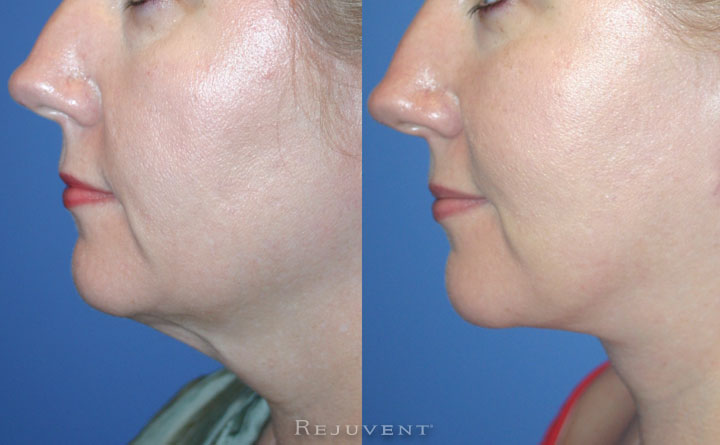 Face And Neck Lift with Corset Pt2