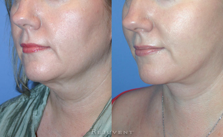 Face And Neck Lift with Corset Pt1