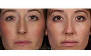 See more Rejuvent Thinning Eyelashes Photos