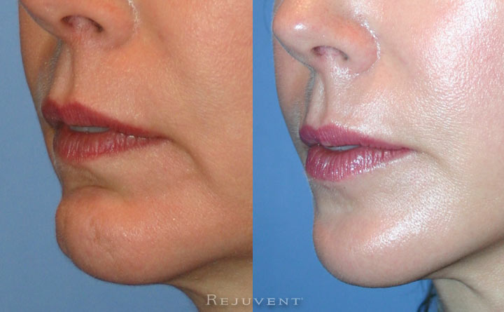 Chin and Facelift Patient 2