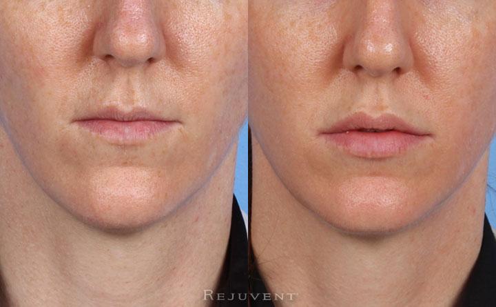 Lip Augmentation Patient 2