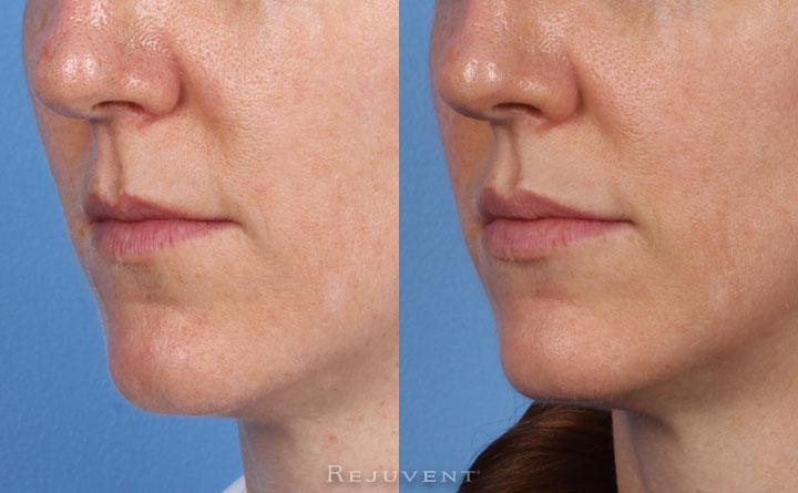 Lips Augmentation Patient 3