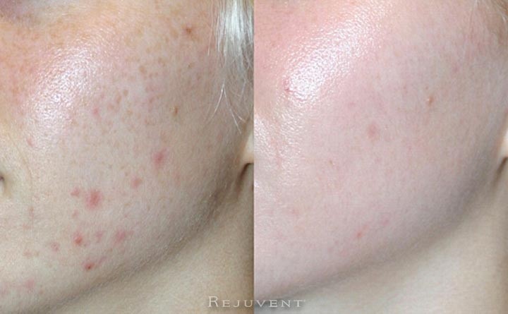 Acne scars before and after