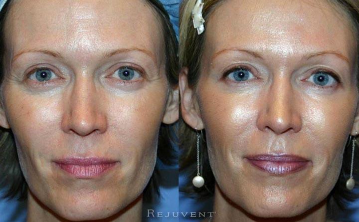Botox Dysport Patient Rejuvent Scottsdale