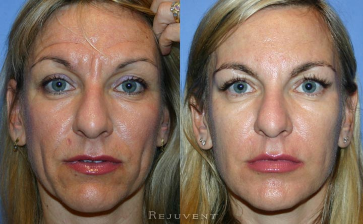 Botox Injections Scottsdale Patient