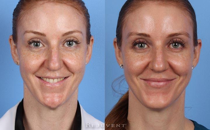 Liquid facelift, Botox, Dysport,  Juvederm, Restylane, Scottsdale