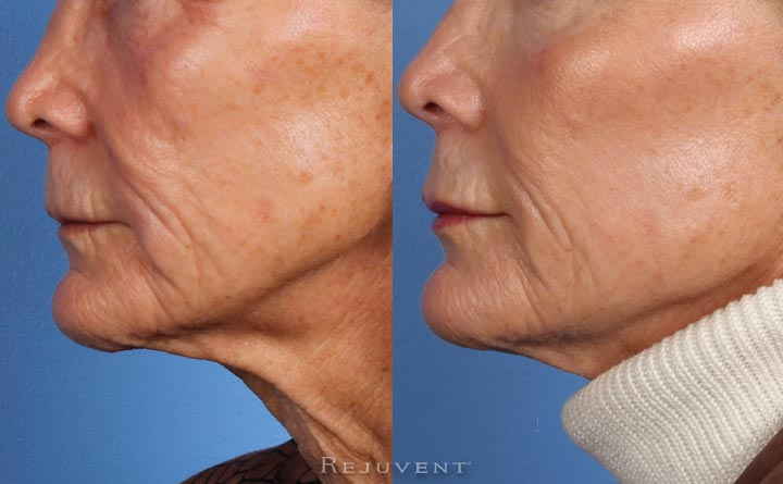 Liquid Facelift Cheek Enhancement